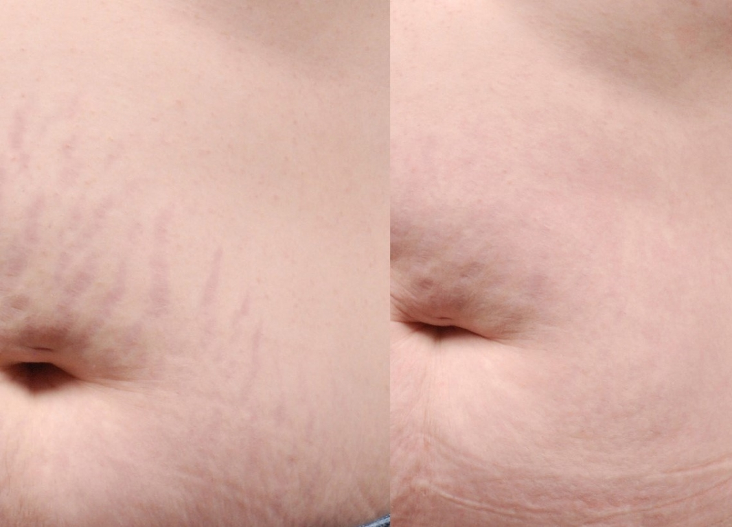 Stretch-Mark-Before--After-4_(2)