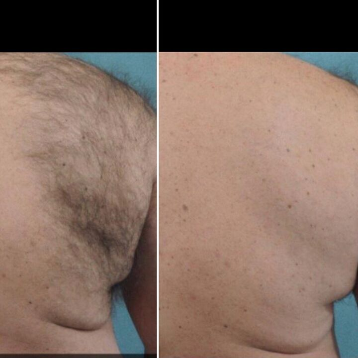 haire_removal_men_2_photo_website