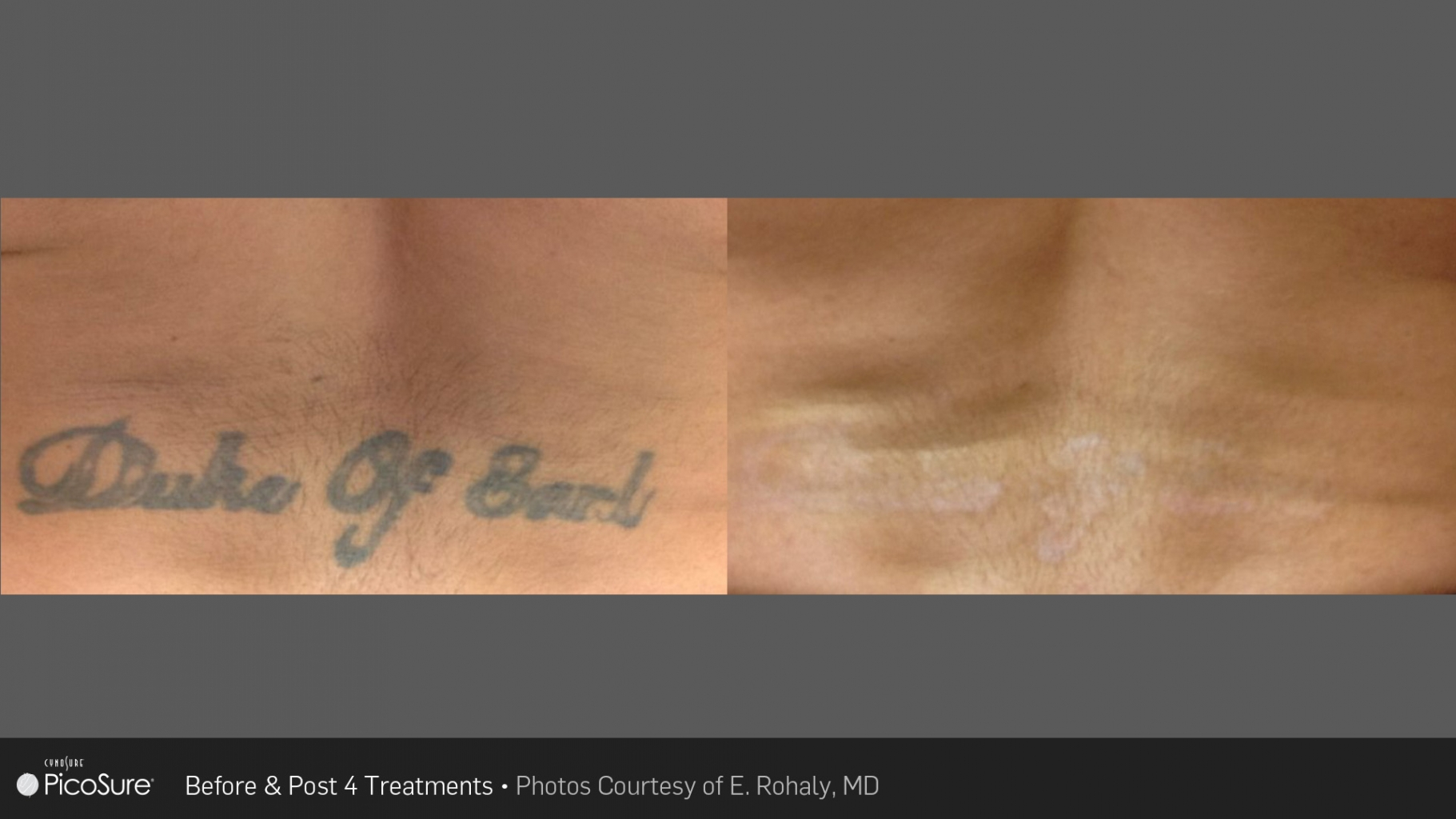 tattoo_removal_1
