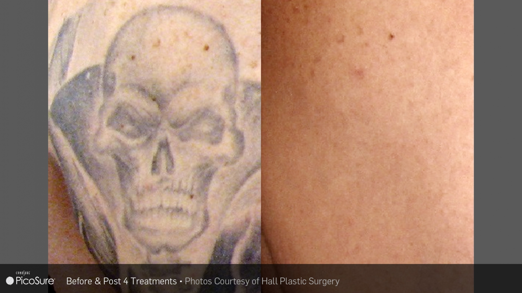 tattoo_removal_2